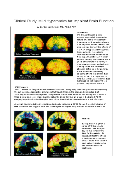 Brain Changes after 10 mHBOT Sessions